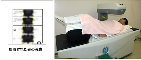 骨密度測定検査(デキサ法)